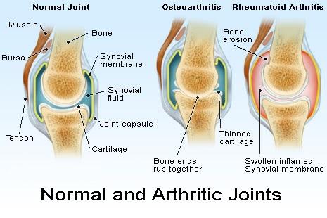 There are two major types of arthritis—osteoarthritis and rheumatoid arthritis.